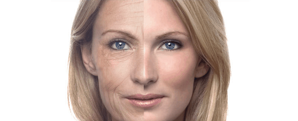 Introduction to Phytoceramides